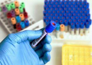 Мъжът, със съмнение за китайски грип не е носител на вируса